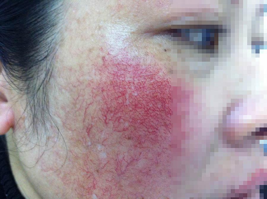 Image result for tác hại của kem trộn